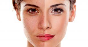 Classificazione della pelle