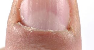 Onicofagia, mangiare le unghie