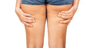 Rimedi efficaci per eliminare la cellulite