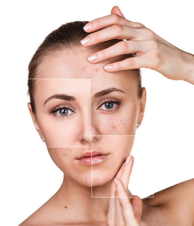 Come prendersi cura della pelle dopo l'estate